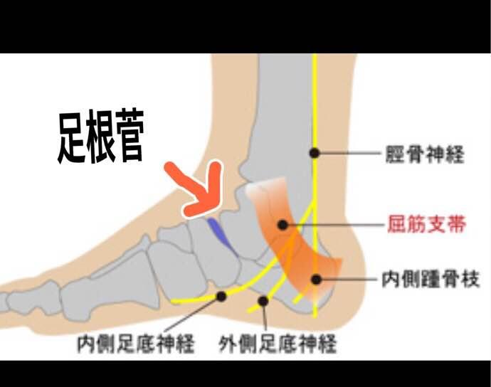 管 足 症候群 根 足根管症候群とは?足根管症候群とはどんな状態?